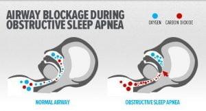 a-killer-nights-sleep-obstructive