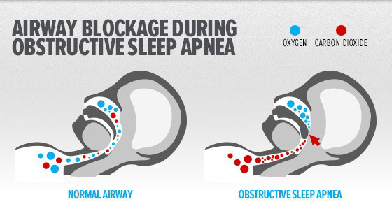 cpapstore-everything you need to know about sleep apnea
