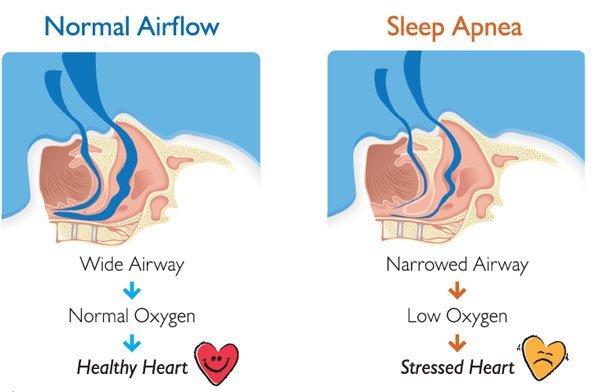 How To Prepare For A Sleep Study Cpapstore Eu